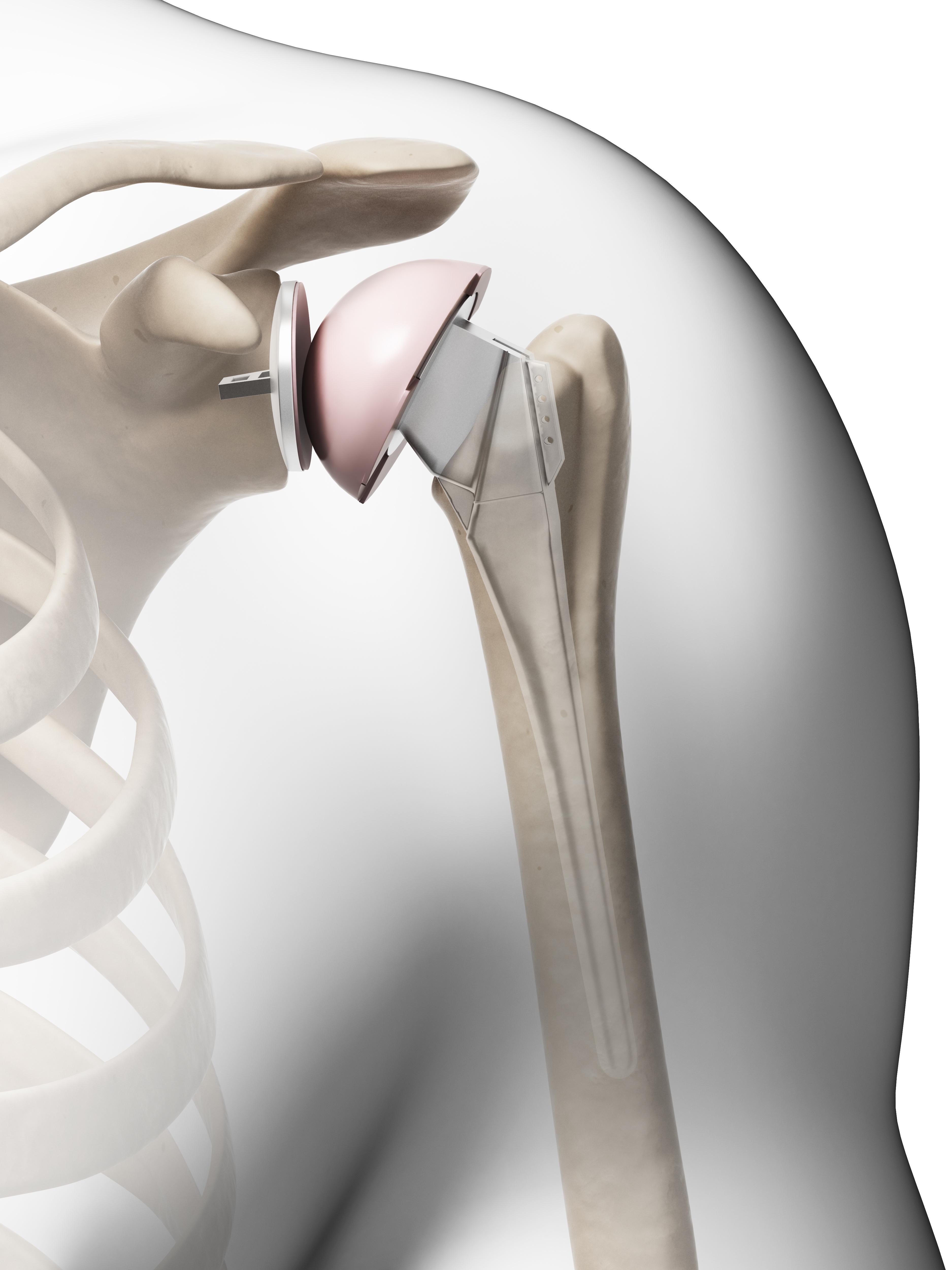 3D Rendering of shoulder replacement